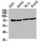 Western Blotting(WB) 2- PIK3R2 Antibody