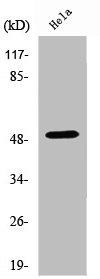 Western Blotting(WB) 1- HDAC3 Antibody