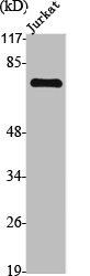 Western Blotting(WB) 1- TGFBR2 Antibody