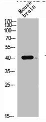 Western Blotting(WB) 2- TGFB1 Antibody