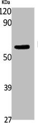 Western Blotting(WB) 1- FTO Antibody