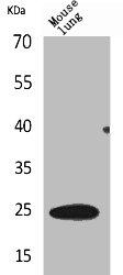 Western Blotting(WB) 1- EDN1 Antibody