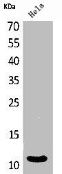 Western Blotting(WB) 1- CXCL8 Antibody