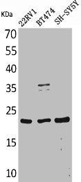 Western Blotting(WB) 1- FGF12 Antibody