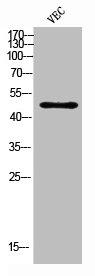 Western Blotting(WB) 1- CSF2RA Antibody