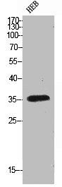 Western Blotting(WB) 1- FAS Antibody