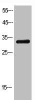 Western Blotting(WB) 1- FGF2 Antibody