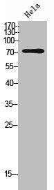 Western Blotting(WB) 1- IL12RB1 Antibody
