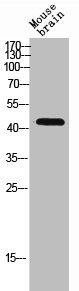 Western Blotting(WB) 1- RHD Antibody