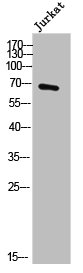 Western Blotting(WB) 1- DBH Antibody