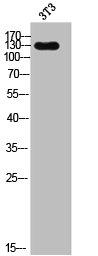Western Blotting(WB) 1- EGF Antibody