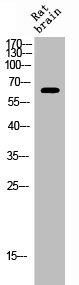 Western Blotting(WB) 1- Phospho-ESR1 (S106) Antibody