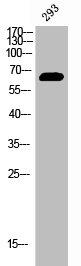 Western Blotting(WB) 1- Phospho-ESR1 (Y537) Antibody