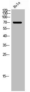 Western Blotting(WB) 1- Phospho-FOXO1 (S256) Antibody
