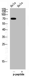 Western Blotting(WB) 1- Phospho-FOXO1 (S329) Antibody