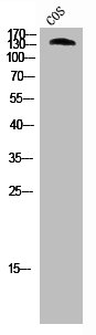 Western Blotting(WB) 2- ABL1 Antibody