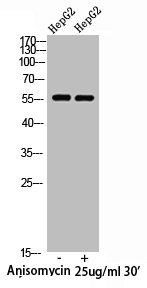 Western Blotting(WB) 1- Phospho-XIAP (S87) Antibody