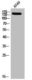 Western Blotting(WB) 1- IGF1R Antibody