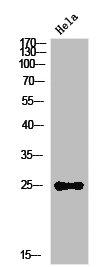 Western Blotting(WB) 1- IL12A Antibody