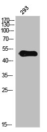 Western Blotting(WB) 1- Phospho-IL13RA1 (Y405) Antibody
