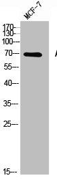 Western Blotting(WB) 1- ACHE Antibody