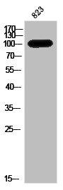 Western Blotting(WB) 1- AR Antibody