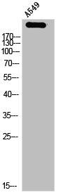 Western Blotting(WB) 1- NUMA1 Antibody