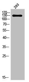 Western Blotting(WB) 1- Phospho-PDGFRA (Y849) Antibody