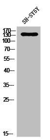 Western Blotting(WB) 1- PDGFRA Antibody