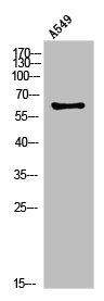 Western Blotting(WB) 1- PLAT Antibody