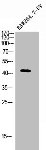 Western Blotting(WB) 1- PSEN1 Antibody