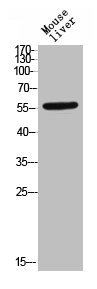 Western Blotting(WB) 1- Phospho-TGFBR1 (S165) Antibody