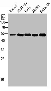 Western Blotting(WB) 1- Acetyl-TP53 (K381) Antibody