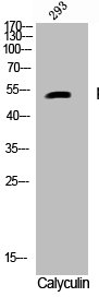 Western Blotting(WB) 1- Phospho-CASP9 (S196) Antibody