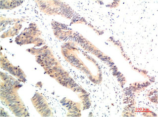 Immunohistochemistry(IHC) 2- HSP90AA1 Antibody