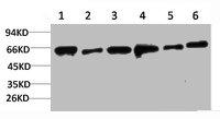 Western Blotting(WB) 1- PRKAA2 Antibody