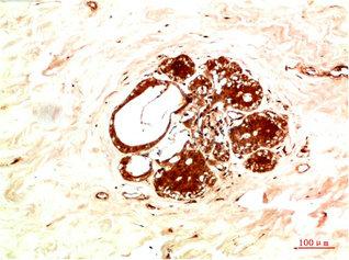 Immunohistochemistry(IHC) 1- JAK2 Antibody