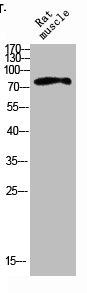 Western Blotting(WB) 1- IL4R Antibody