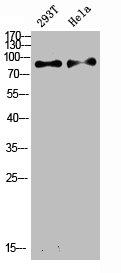 Western Blotting(WB) 2- IL4R Antibody