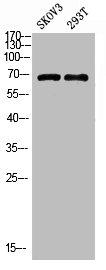 Western Blotting(WB) 1- PPP1R15A Antibody
