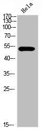 Western Blotting(WB) 1- Phospho-TP53 (Ser366) Antibody