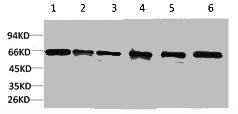 Western Blotting(WB) 1- PRKAA1 Antibody