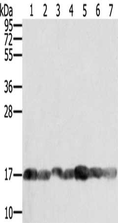 Western Blotting(WB) - PPIA Antibody