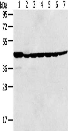 Western Blotting(WB) - MAPK3 Antibody
