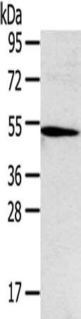 Western Blotting(WB) - TNFRSF4 Antibody