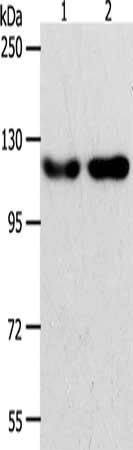 Western Blotting(WB) - ABL2 Antibody