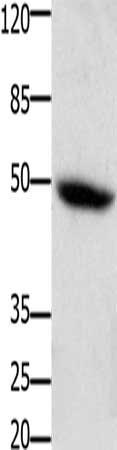 Western Blotting(WB) - CSF2RA Antibody