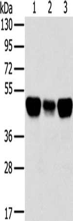 Western Blotting(WB) - TRIM21 Antibody