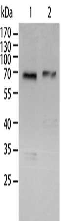 Western Blotting(WB) - RELA Antibody