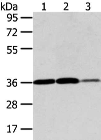Western Blotting(WB) - VEGFA Antibody
